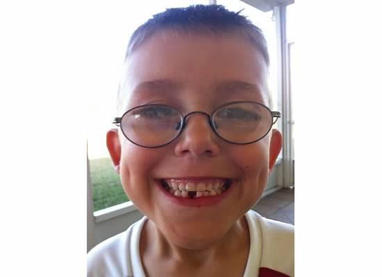 In addition to scoring his 'second' and 'third' goals, T.Puzzle lost his very first tooth.  Quite a day for this World-Cup future phenom!
